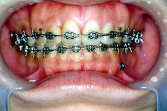 ●珍惜每一次的齿颚矫正回诊~~不管你是医生或是病患