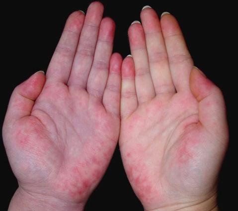 以上即为三种红斑狼疮的主要症状表现