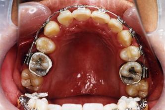 2007年9月28日●矫正牙齿过程中的注意事项
