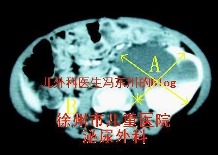 肾盂输尿管交界部梗阻(肾积水)3 - lancet19 - lancet19的博客