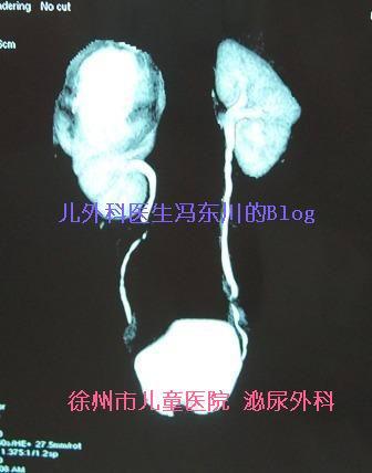 重肾双输尿管畸形 - lancet19 - lancet19的博客