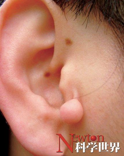 人的耳朵为什么会发热? - kxsj - Newton-科学世界