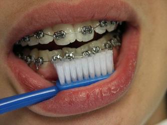2007年9月29日●戴牙箍,饭后应立即刷牙