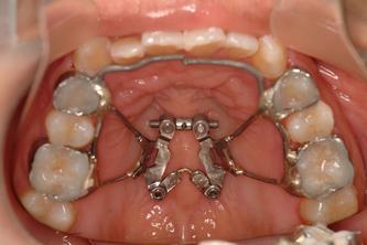 ●就是它~two hinge expander於口內就位情形