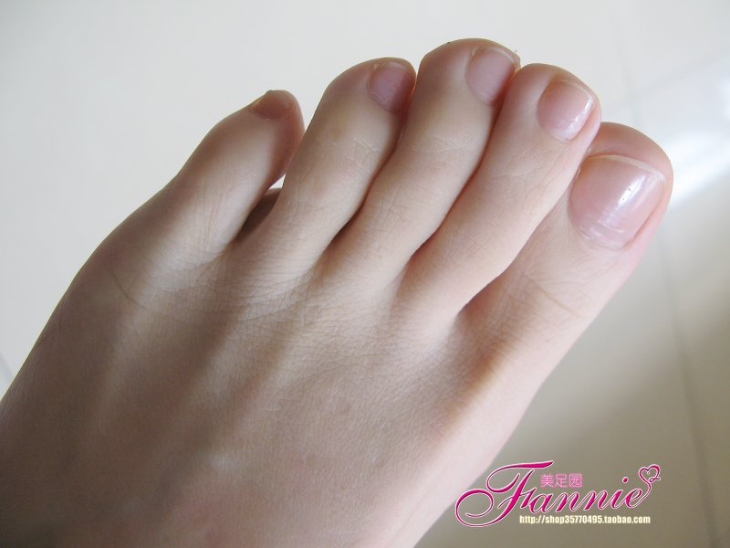 大脚趾和小脚趾外侧绝不可有过于肥厚的突起