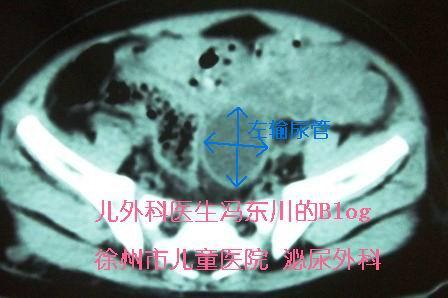 巨输尿管手术一例 - lancet19 - lancet19的博客