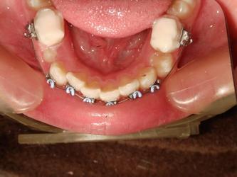 ●跌跌撞撞,半推半就,整平下颚牙列的过程