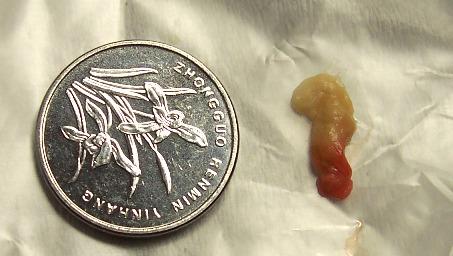 一例32天的婴儿结石至肾衰的病例 - lancet19 - lancet19的博客