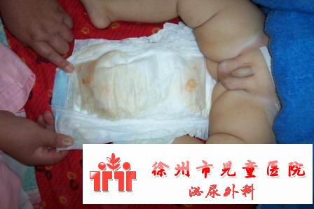 尿布有异常水垢样物吃三鹿奶粉患儿的家长应高度重视 - lancet19 - lancet19的博客