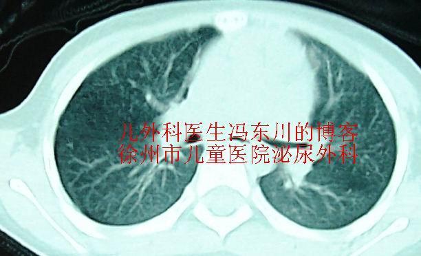 谁在制造癌症治疗的谣言! - lancet19 - lancet19的博客