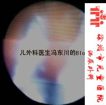 膀胱内、可疑与奶粉相关的结石 (清晰大图) - lancet19 - lancet19的博客