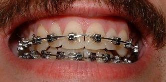 2007年9月29日●你需要矫正牙齿吗?