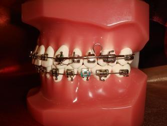 ●ortho organizers的产品~MDA(multi-distalizing arch)大臼齿远心移动的利器