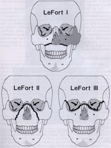 2007年10月18日●正颌手术前的正畸包括哪些内容?