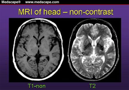 核磁共振T1与T2区别 - ふじま - 独一不二
