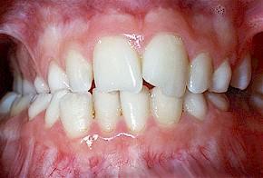 2007年9月28日●什么是后牙反合(posterior crossbite)?