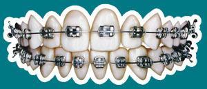 2007年10月13日●口腔正畸学(orthodontics)的定义