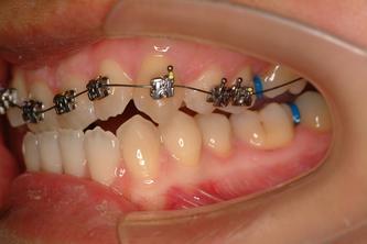 ●CL III malocclusion三类错咬(地包天,戽斗)的齿列咬合变化图像(左侧观)