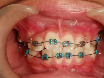 """●""""告别整齐的烂牙"""" — 正畸期间的口腔护理"""