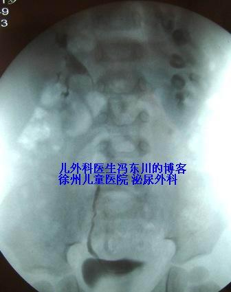 第一例奶粉相关的X片阳性结石 - lancet19 - lancet19的博客