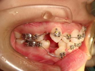 ●前牙拥挤(anterior crowding)伴拔除4个4(4 bi extraction)的操作注意点