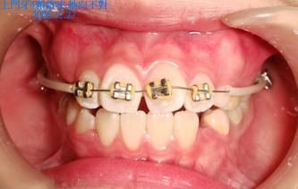 2007年9月29日●儿童换牙期间常常出现一些错合现象,如何处理?