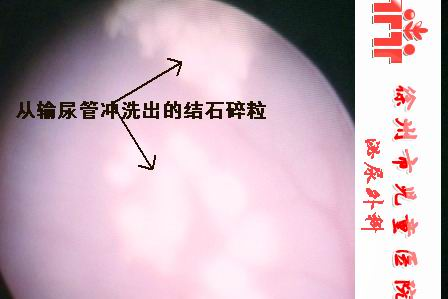 五岁十个月的可疑与奶粉相关的结石病例 - lancet19 - lancet19的博客