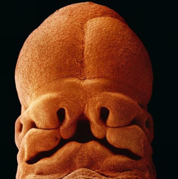 子宫内胎儿发育全过程 - 香儿 - xianger
