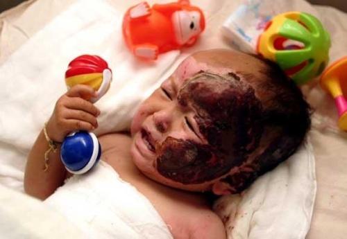 被烧伤的婴儿 - 小时候麻雀漫天飞 - 麻雀 的博客