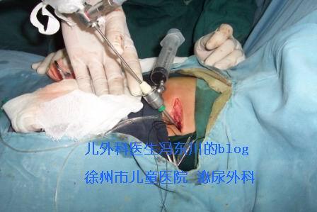 一例肾积水合并可疑奶粉结石手术图解 - lancet19 - lancet19的博客