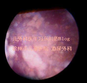 我们是怎样粉碎膀胱内典型的三鹿奶粉结石的 - lancet19 - lancet19的博客