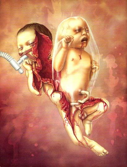 死亡娃娃 - 灰色·人生 - 墓