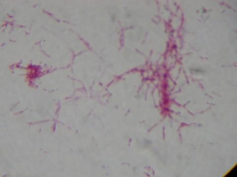 【原创】我分离出的分枝杆菌 - hampc168 - hampc168