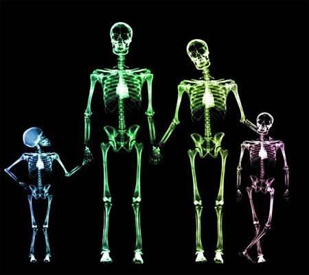 X光下的绝对裸体 - 一起过,健康网络生活 - 一起过
