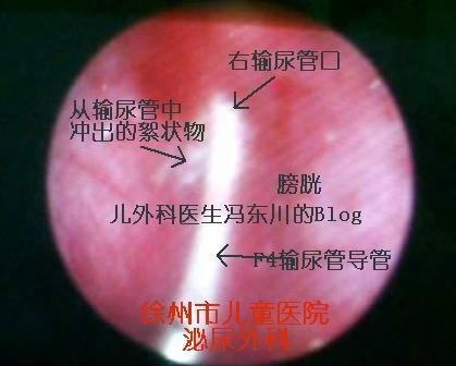 膀胱结石术中冲洗输尿管冲出的可疑物质 - lancet19 - lancet19的博客