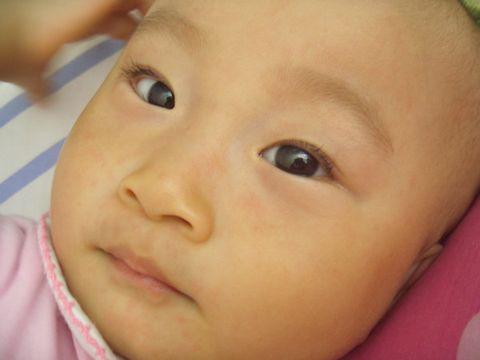 幼儿急疹(宝宝发烧