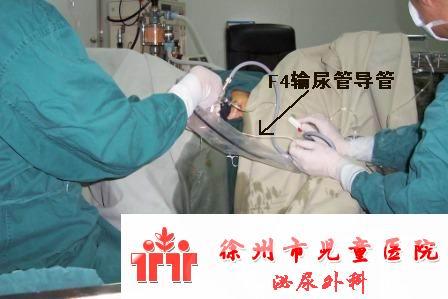 筛查出的又一例奶粉结石梗阻,经膀胱镜冲洗效果很好 - lancet19 - lancet19的博客