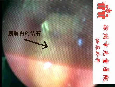 今天手术的又一例和奶粉有关的尿道结石 - lancet19 - lancet19的博客