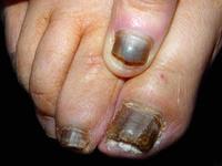 """""""灰指甲""""可以这样治 - 健康有约 - 健康有约"""