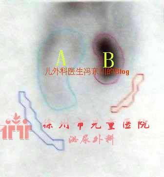 肾盂输尿管交界部梗阻(肾积水)1 - lancet19 - lancet19的博客