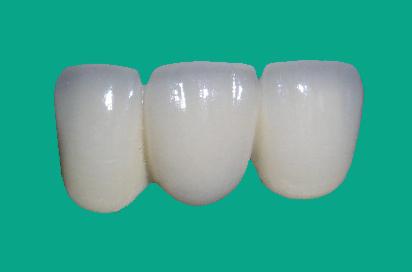 氧化铝牙_上海弄氧化铝全瓷牙一颗需要多少钱上海万众