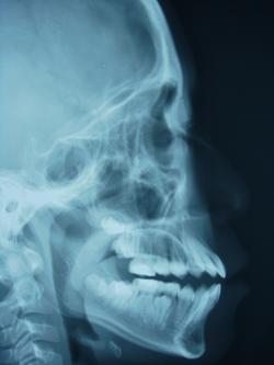 ●局部小开咬(OPEN BITE)的X光像