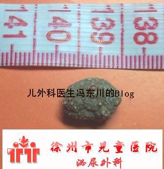 一枚膀胱结石 - lancet19 - lancet19的博客