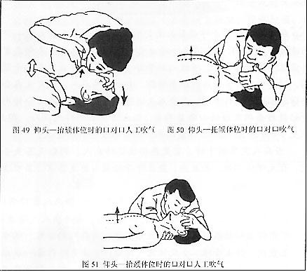 插画救急员 - 设屋攻业 - RECYCLE 365