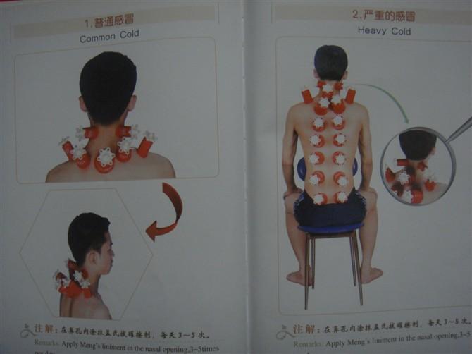 感冒 胆囊炎 便秘 头痛 肩周炎 腰捶间盘突出 关节炎等拔罐图解   - 好吃 - abc的博客