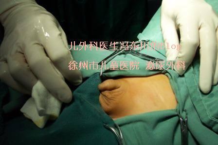 科普:最常见的儿外科手术(图解腹股沟斜疝手术) - lancet19 - lancet19的博客