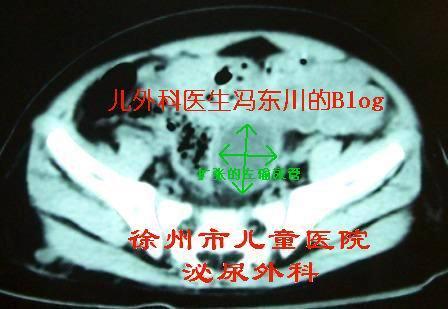 下尿路梗阻(神经源性膀胱?后尿道瓣膜?) - lancet19 - lancet19的博客