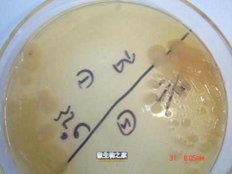 【转贴】马尔尼菲青霉菌 - null - hampc168