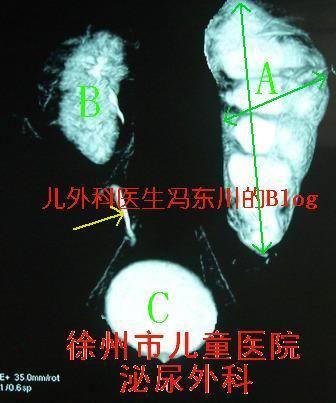肾盂输尿管交界部梗阻(肾积水)2 - lancet19 - lancet19的博客