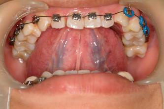 ●我教病人做肌肉与舌头训练(muscle &tongue training)